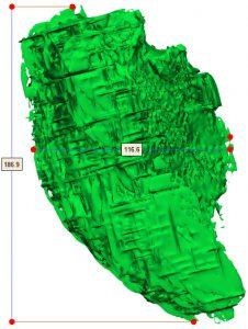 biomodelo impreso en 3D planificar cirugías tumorales